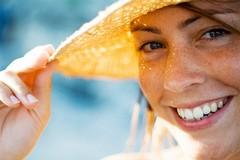 Estate e abbronzatura: cosa bisogna sapere sui nei