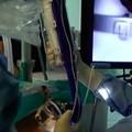 Più di 10mila interventi di otorinolaringoiatria dal 2008: a Barletta si celebra San Biagio