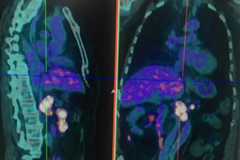 Tumori neuroendocrini: eseguita a Barletta per la prima volta in Puglia la prima Pet con Gallio 68