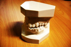 Odontotecnico denti